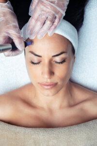 Microneedling bei Falten und Haarausfall, Microneedling für strahlende Haut, SoGsund